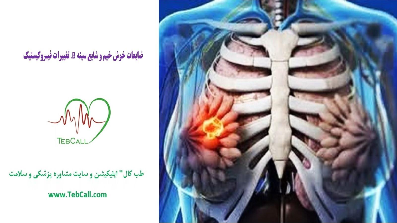ضایعات خوش خیم و شایع سینه B. تغییرات فیبروکیستیک