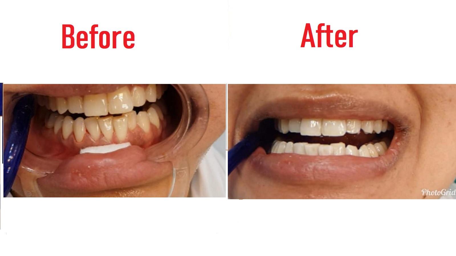 بلیچینگ ( سفید کردن دندان ها)